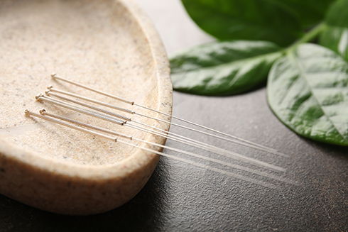 A Look at Acupuncture